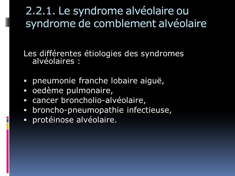 2.2.1. Le syndrome alvéolaire ou syndrome de comblement alvéolaire