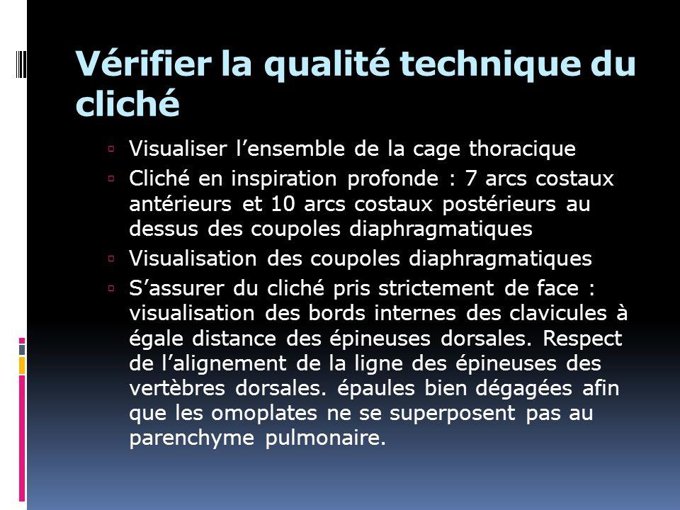 Vérifier la qualité technique du cliché