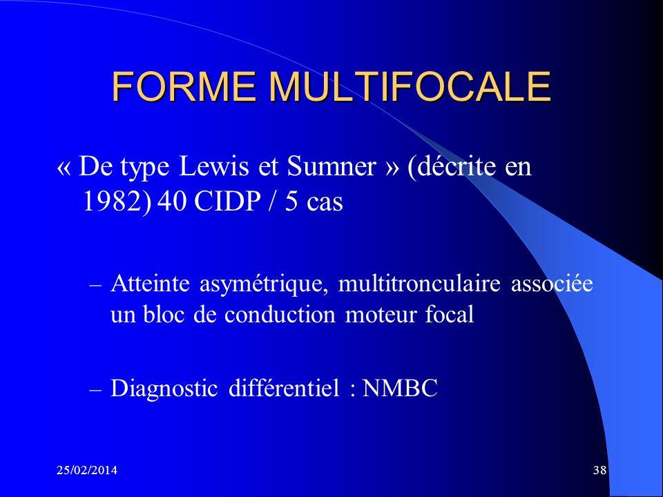 FORME MULTIFOCALE « De type Lewis et Sumner » (décrite en 1982) 40 CIDP / 5 cas.