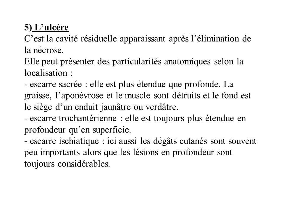 5) L'ulcère C'est la cavité résiduelle apparaissant après l'élimination de la nécrose.