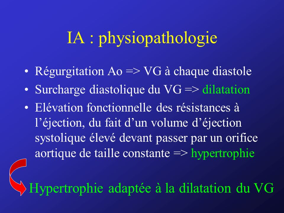 IA : physiopathologie Hypertrophie adaptée à la dilatation du VG