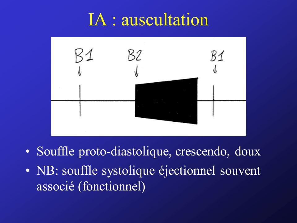 IA : auscultation Souffle proto-diastolique, crescendo, doux