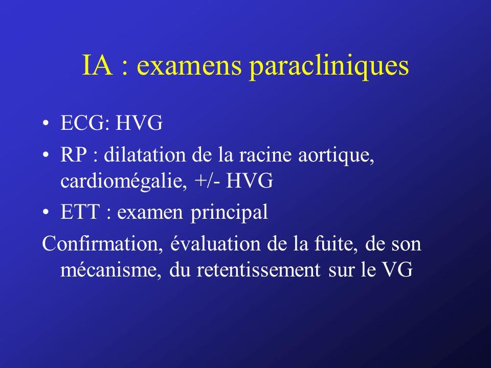IA : examens paracliniques