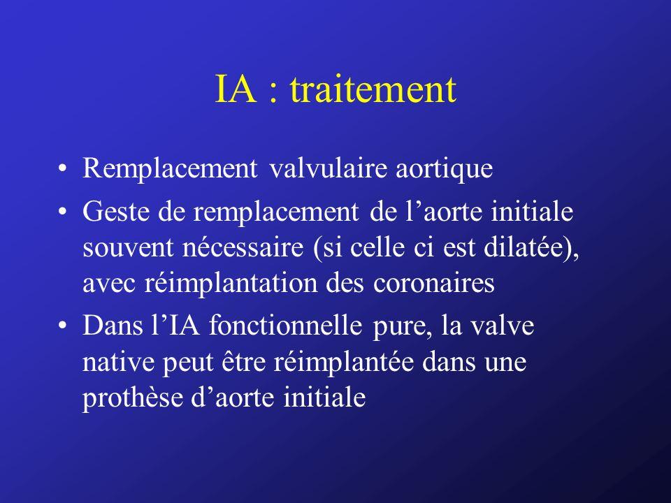 IA : traitement Remplacement valvulaire aortique