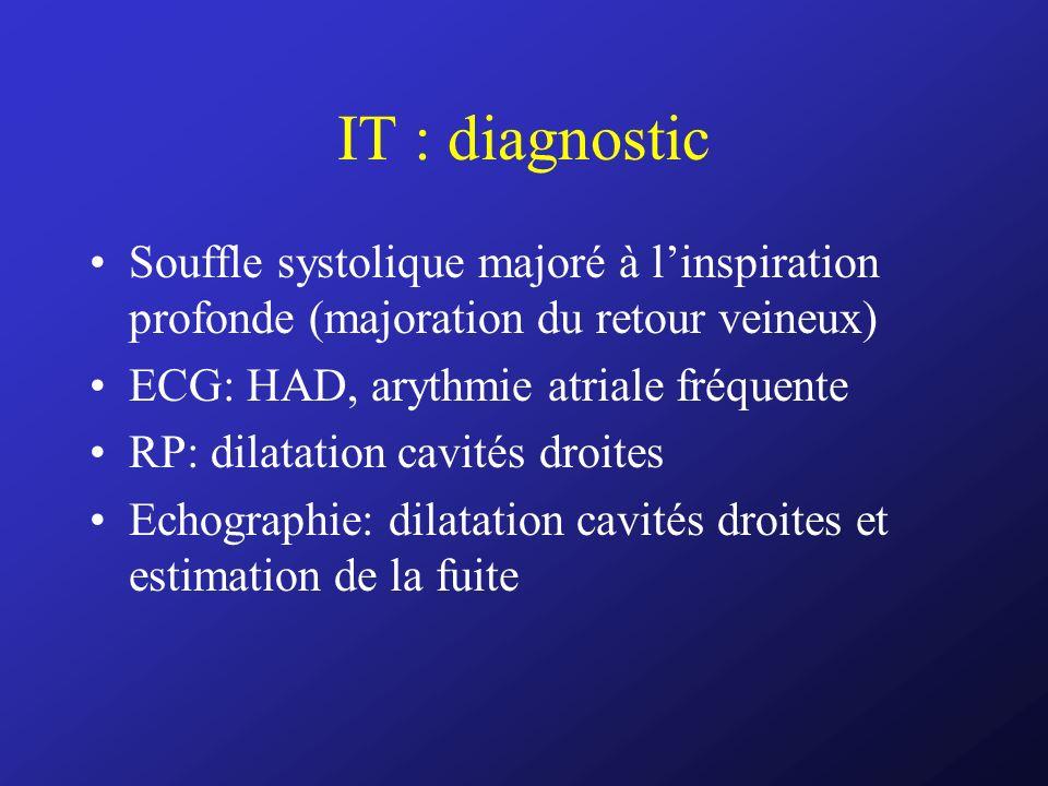 IT : diagnostic Souffle systolique majoré à l'inspiration profonde (majoration du retour veineux) ECG: HAD, arythmie atriale fréquente.