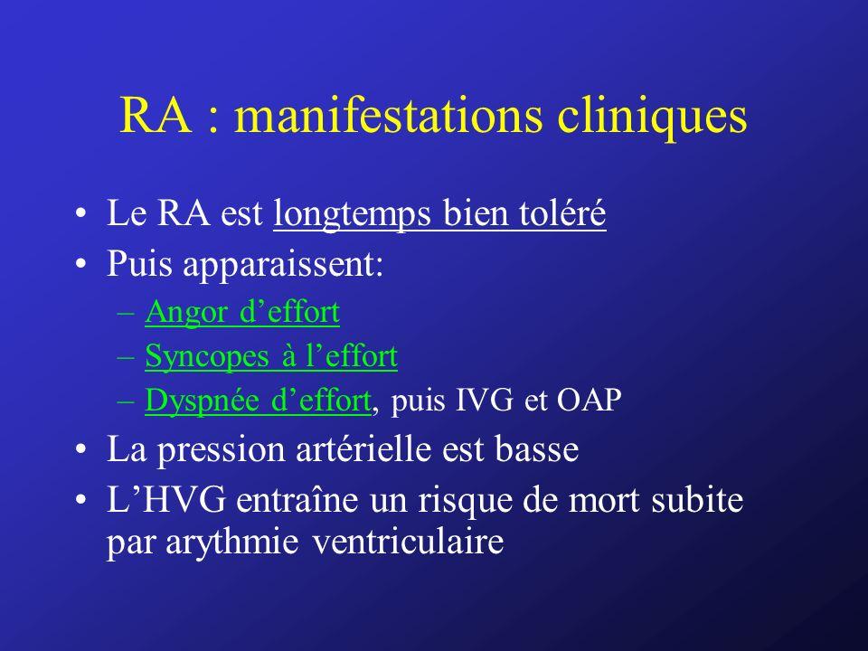 RA : manifestations cliniques