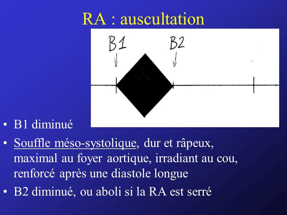 RA : auscultation B1 diminué