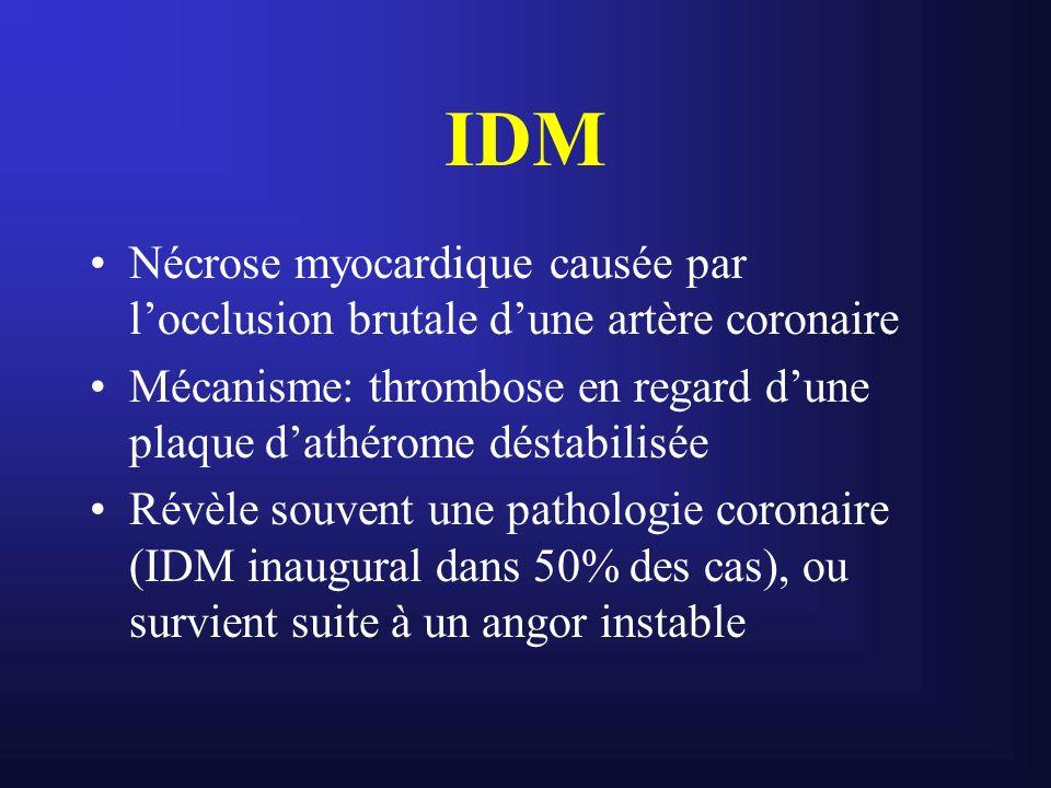IDM Nécrose myocardique causée par l'occlusion brutale d'une artère coronaire. Mécanisme: thrombose en regard d'une plaque d'athérome déstabilisée.