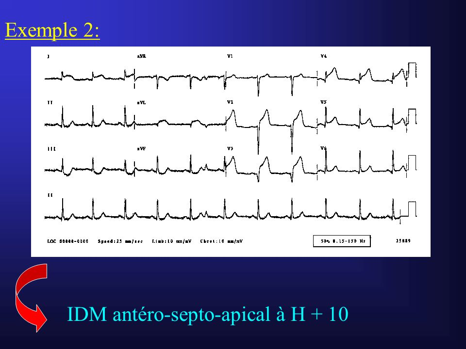 Exemple 2: IDM antéro-septo-apical à H + 10