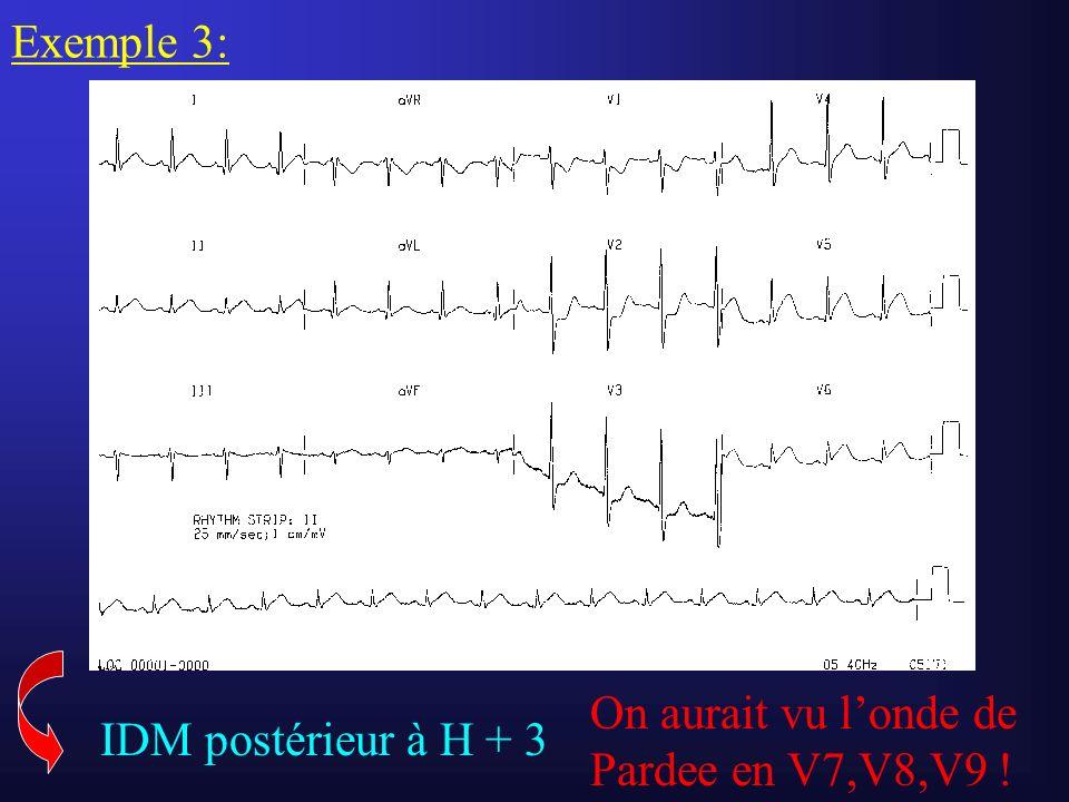 Exemple 3: On aurait vu l'onde de Pardee en V7,V8,V9 ! IDM postérieur à H + 3