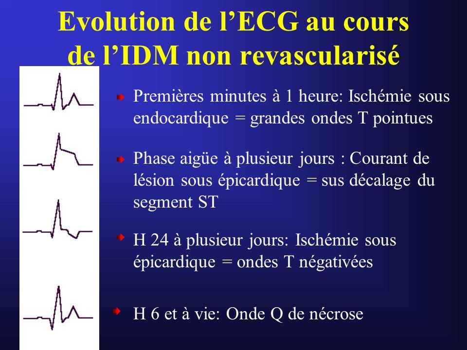 Evolution de l'ECG au cours de l'IDM non revascularisé