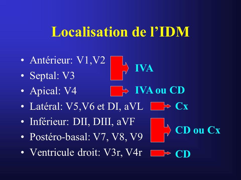 Localisation de l'IDM Antérieur: V1,V2 Septal: V3 IVA Apical: V4