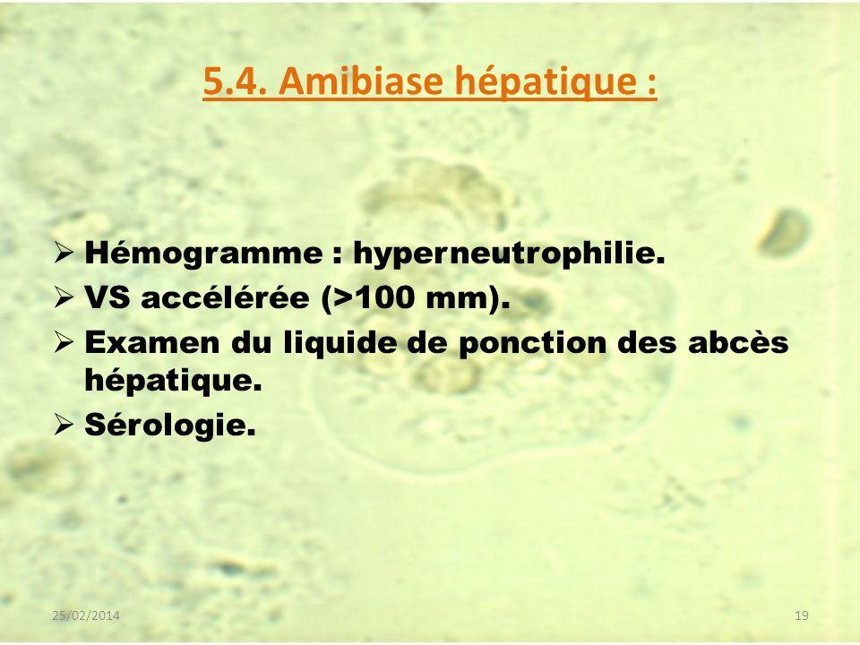 5.4. Amibiase hépatique : Hémogramme : hyperneutrophilie.