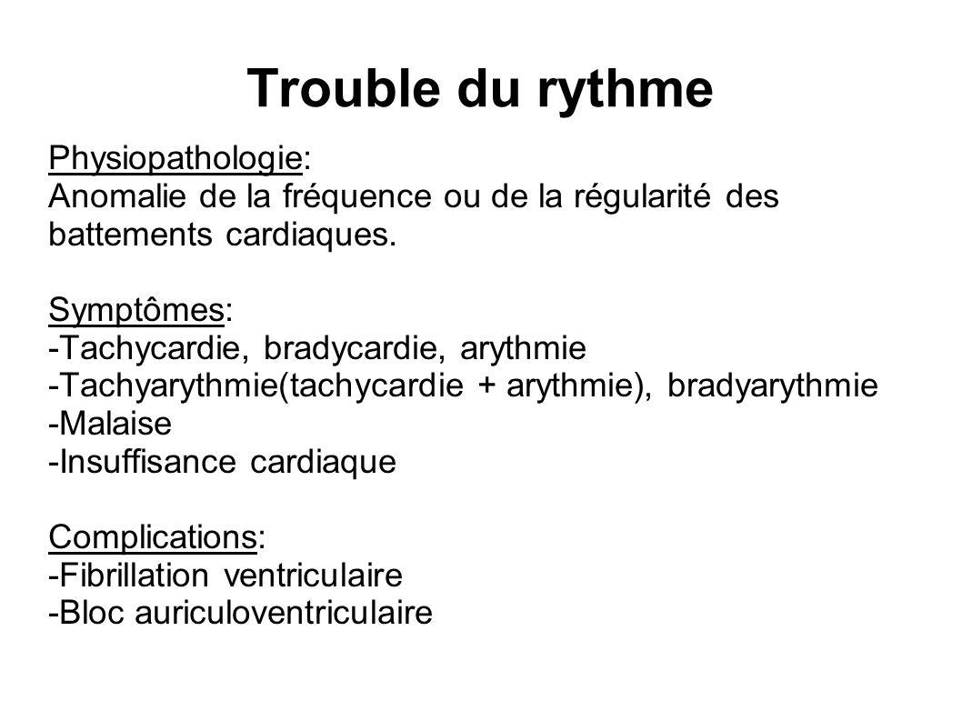 Trouble du rythme Physiopathologie: