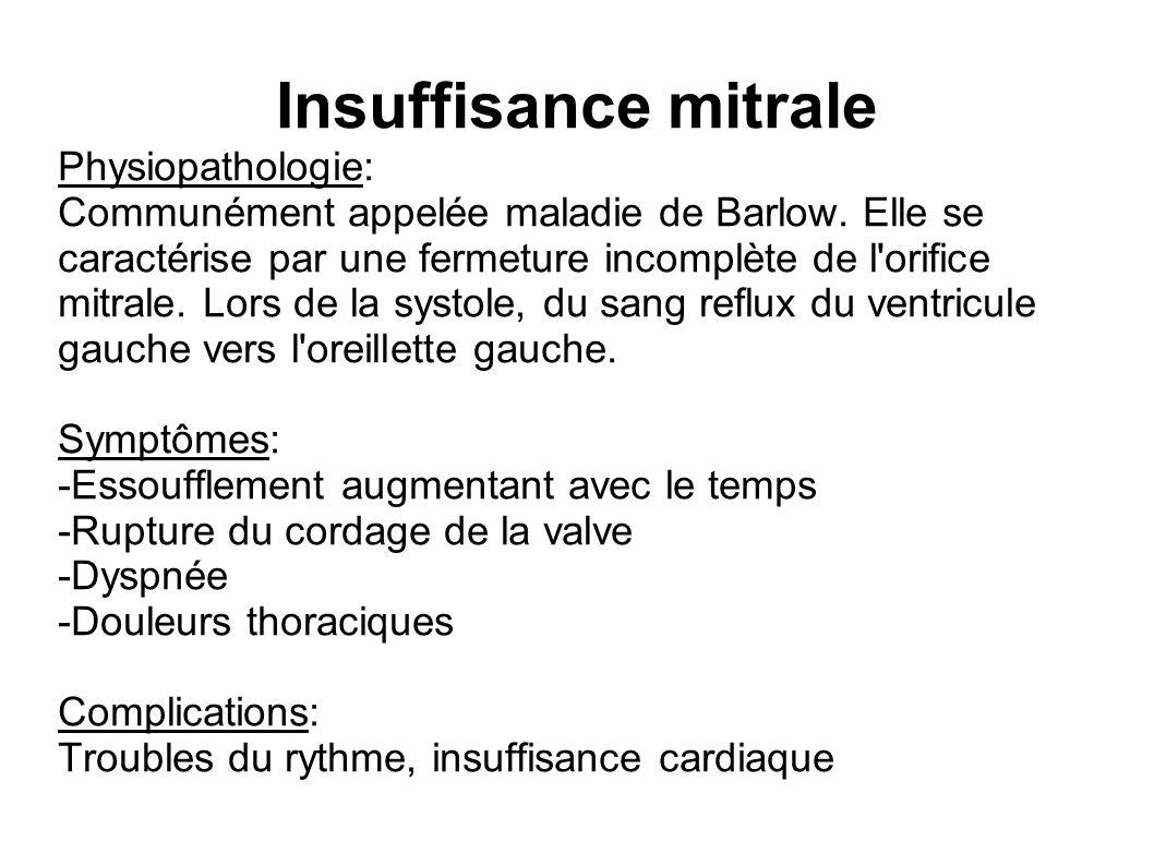 Insuffisance mitrale Physiopathologie: