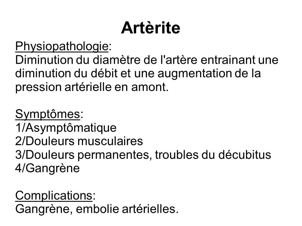 Artèrite Physiopathologie: