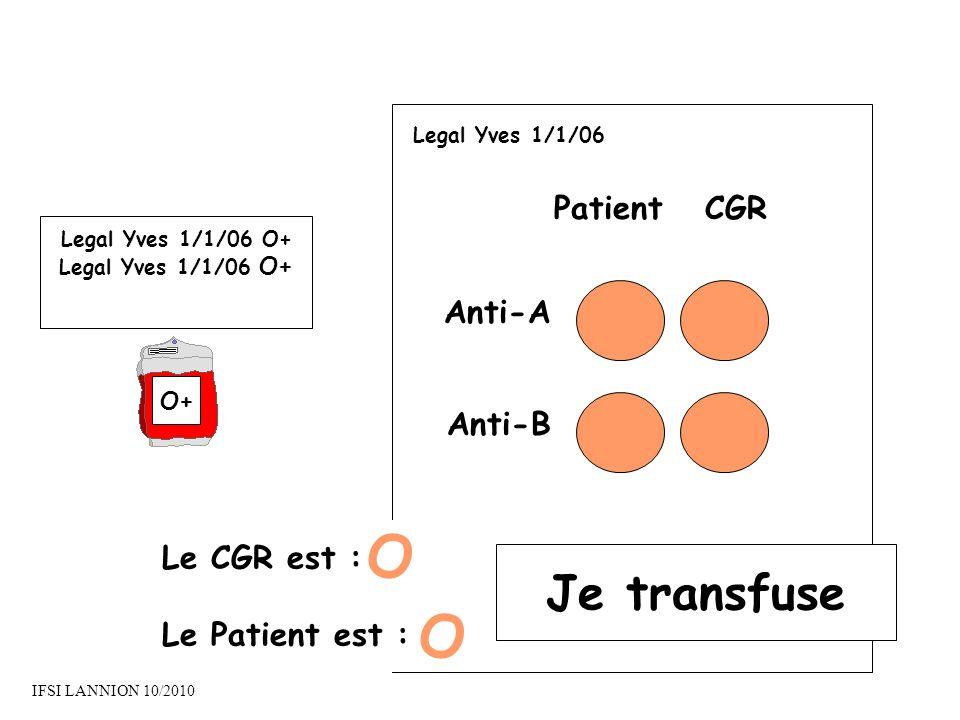 O O Je transfuse Patient CGR Anti-A Anti-B Le CGR est :