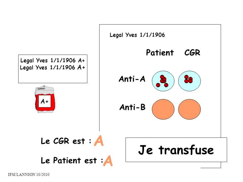 A A Je transfuse Patient CGR Anti-A Anti-B Le CGR est :