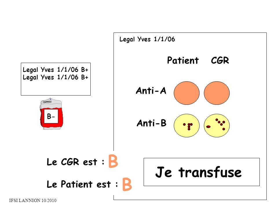 B B Je transfuse Patient CGR Anti-A Anti-B Le CGR est :