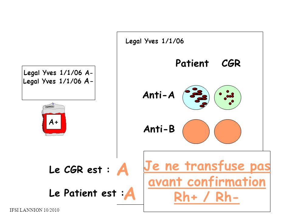 A A Je ne transfuse pas avant confirmation Rh+ / Rh- Patient CGR