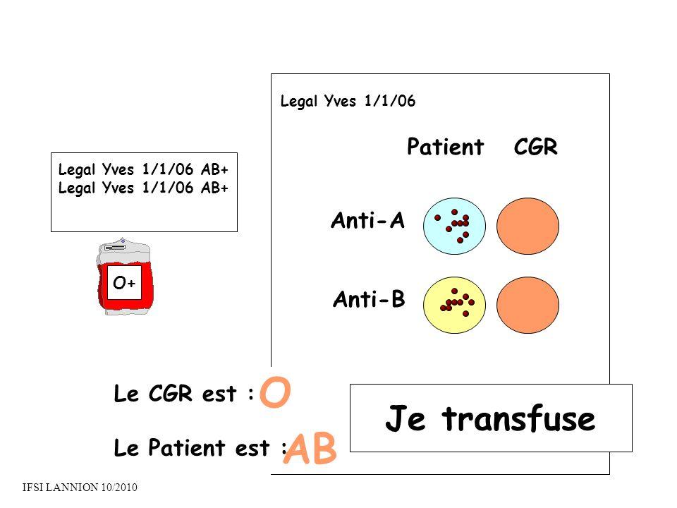 O AB Je transfuse Patient CGR Anti-A Anti-B Le CGR est :