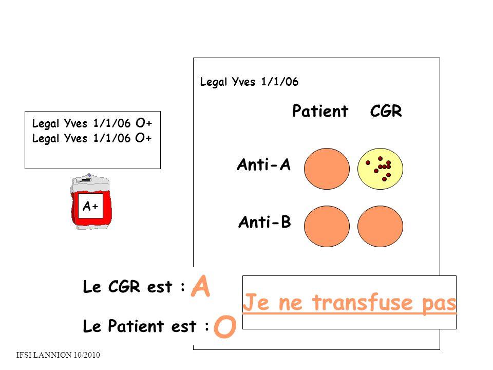 A O Je ne transfuse pas Patient CGR Anti-A Anti-B Le CGR est :