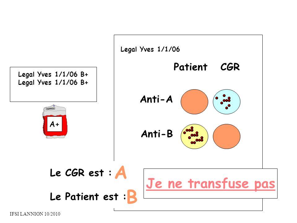 A B Je ne transfuse pas Patient CGR Anti-A Anti-B Le CGR est :