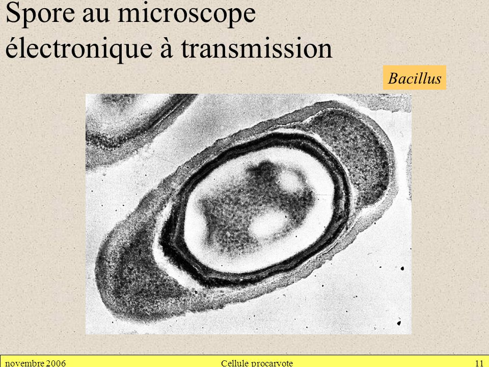 Spore au microscope électronique à transmission