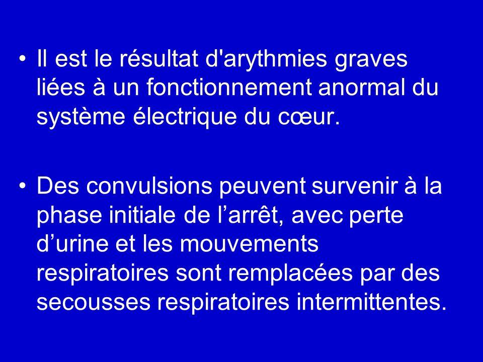 Il est le résultat d arythmies graves liées à un fonctionnement anormal du système électrique du cœur.