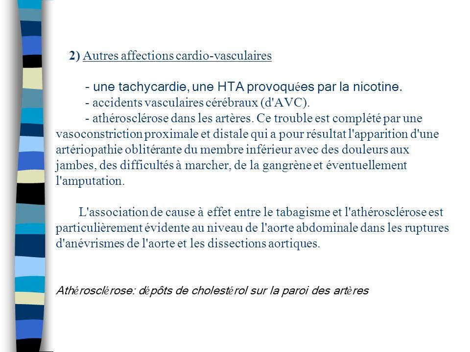 2) Autres affections cardio-vasculaires - une tachycardie, une HTA provoquées par la nicotine.