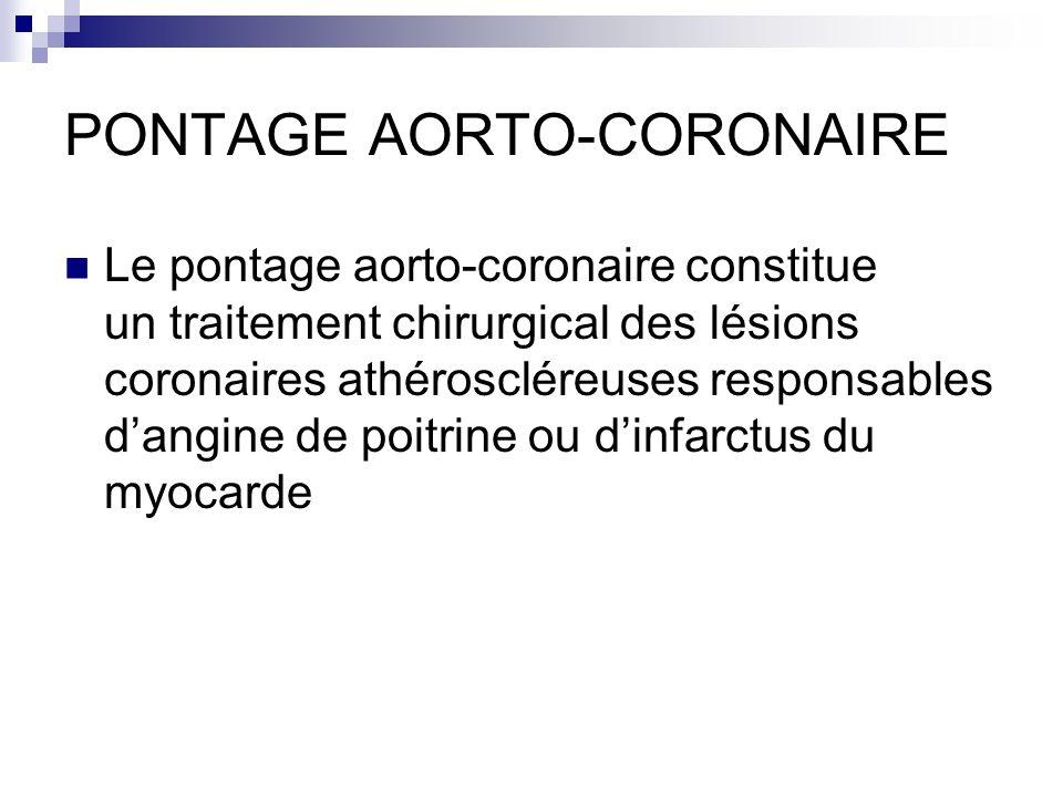 PONTAGE AORTO-CORONAIRE