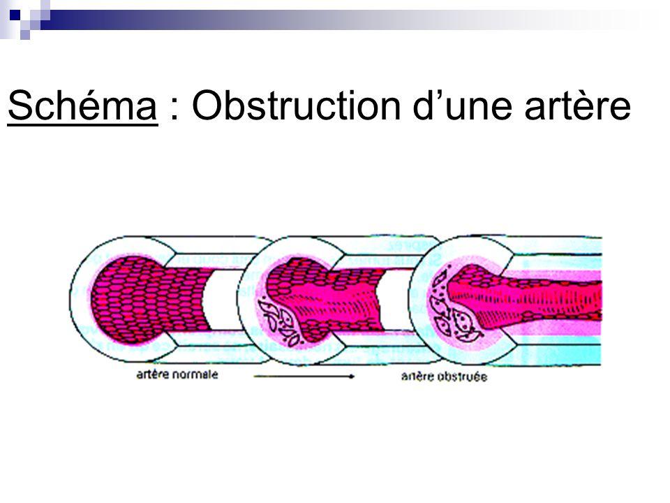 Schéma : Obstruction d'une artère