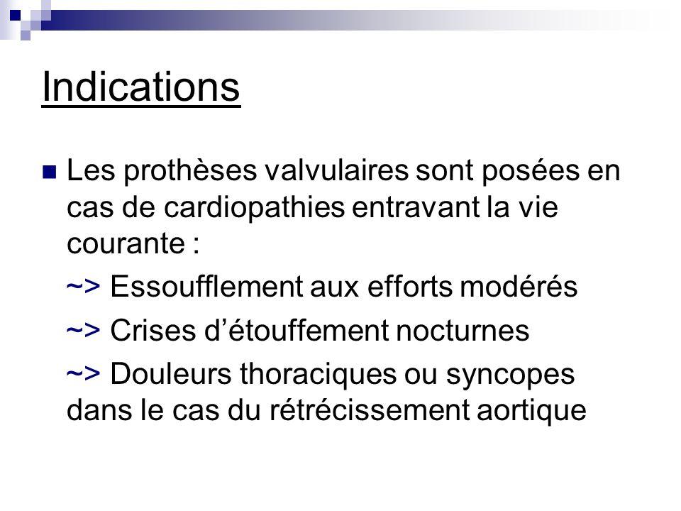 Indications Les prothèses valvulaires sont posées en cas de cardiopathies entravant la vie courante :