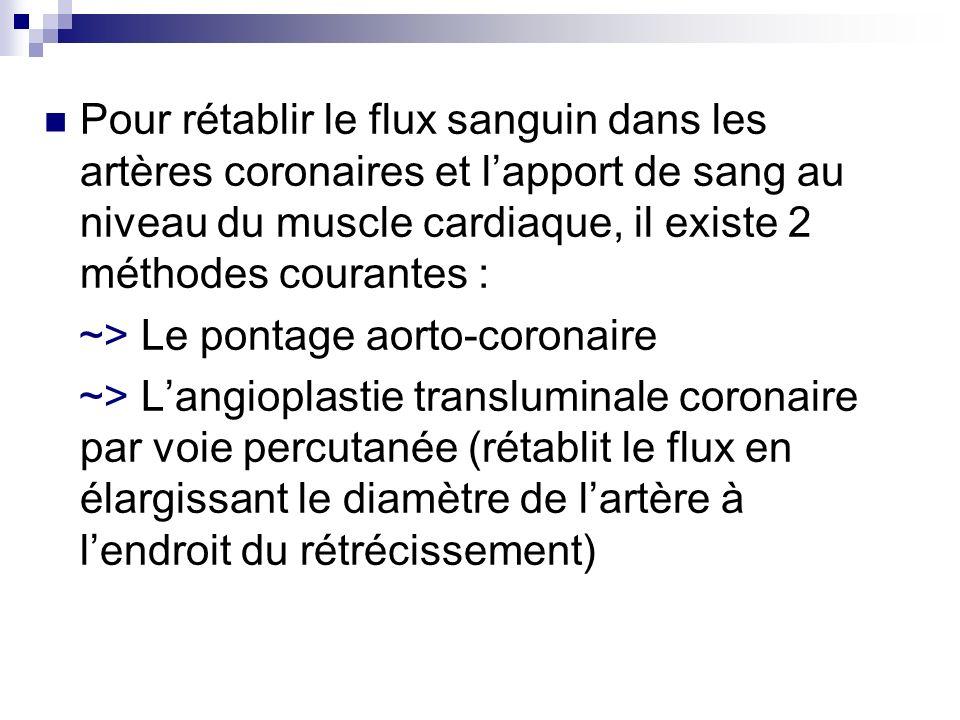 Pour rétablir le flux sanguin dans les artères coronaires et l'apport de sang au niveau du muscle cardiaque, il existe 2 méthodes courantes :