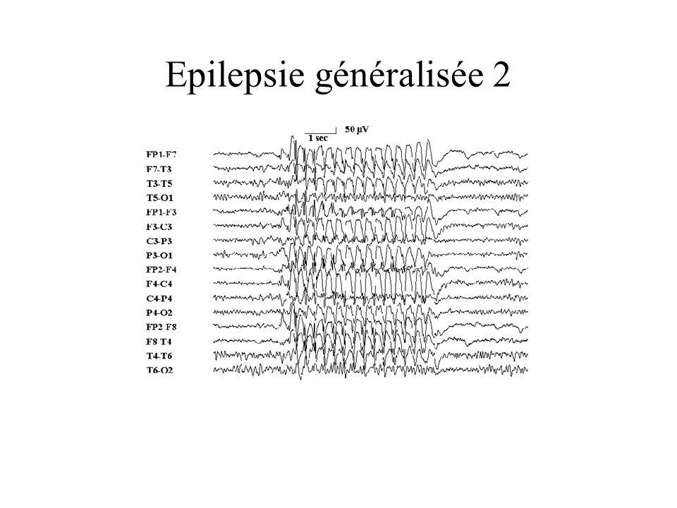 Epilepsie généralisée 2