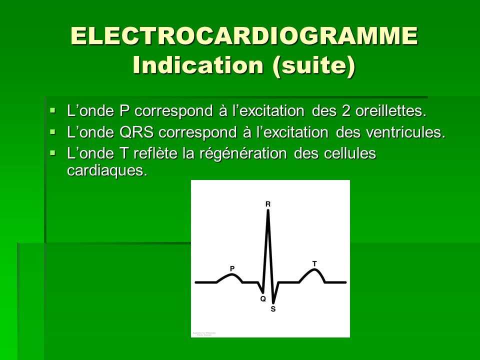 ELECTROCARDIOGRAMME Indication (suite)