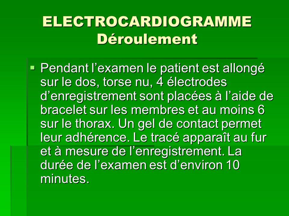 ELECTROCARDIOGRAMME Déroulement