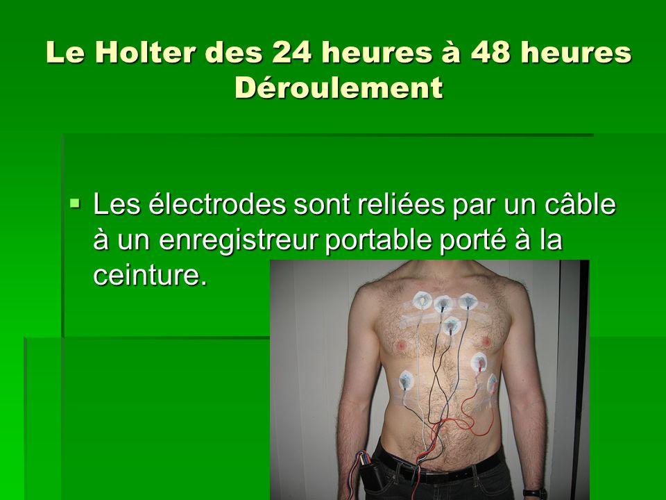 Le Holter des 24 heures à 48 heures Déroulement