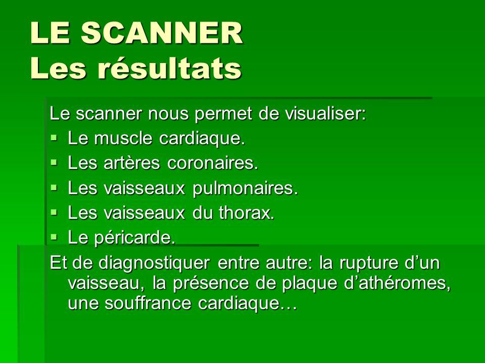 LE SCANNER Les résultats