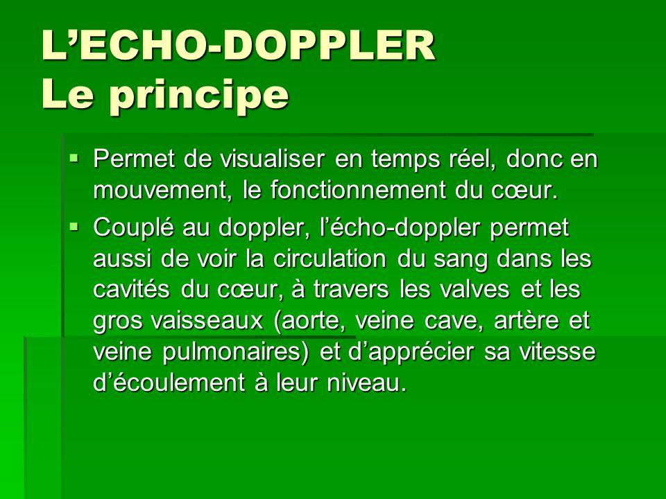 L'ECHO-DOPPLER Le principe