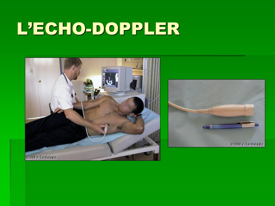 L'ECHO-DOPPLER