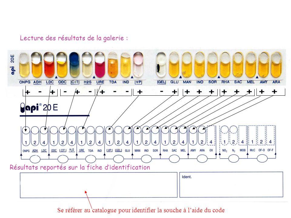 5- Identification de la souche