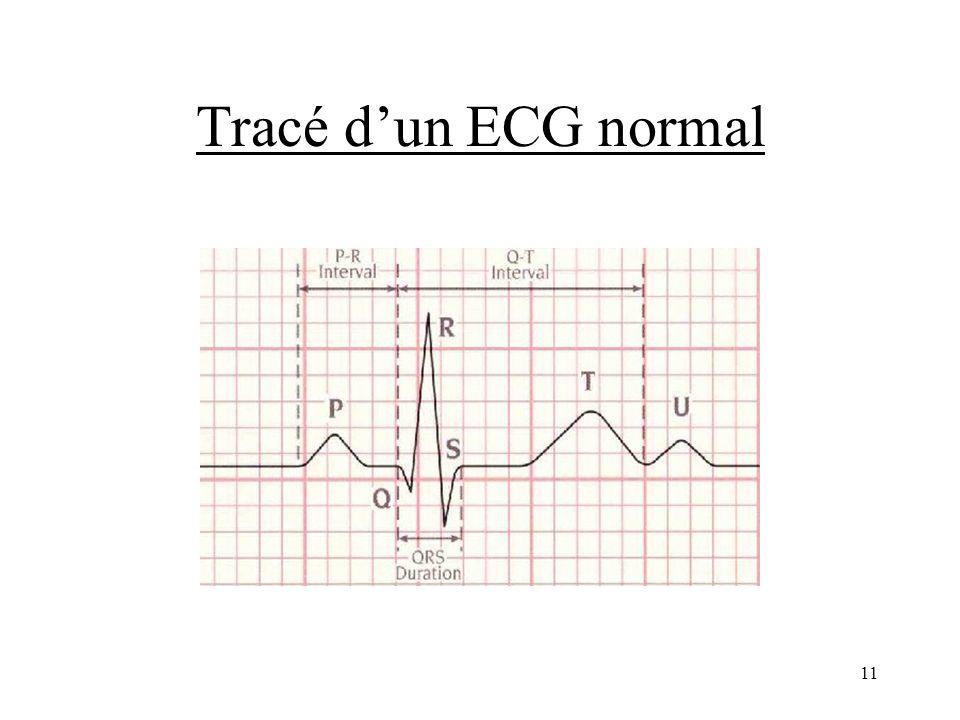 Tracé d'un ECG normal
