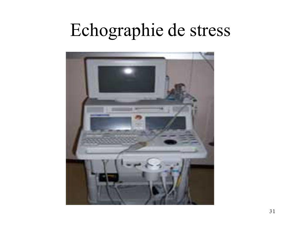 Echographie de stress