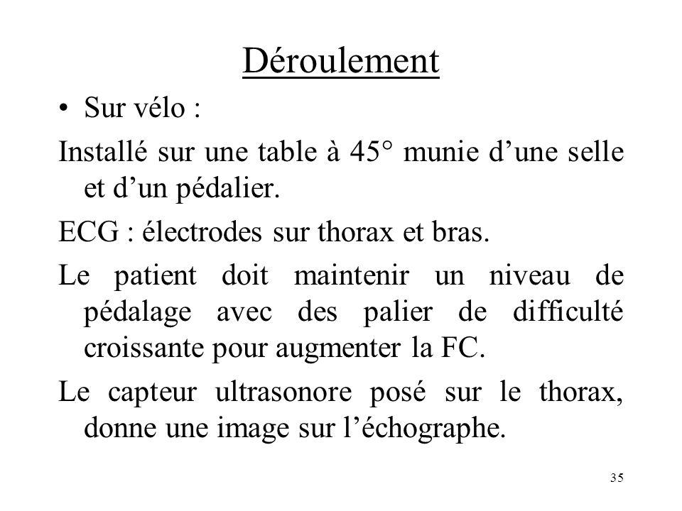 Déroulement Sur vélo : Installé sur une table à 45° munie d'une selle et d'un pédalier. ECG : électrodes sur thorax et bras.