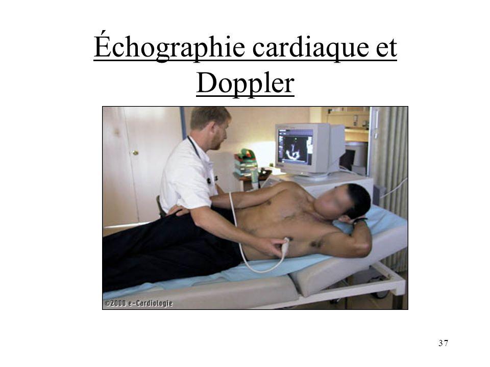 Échographie cardiaque et Doppler
