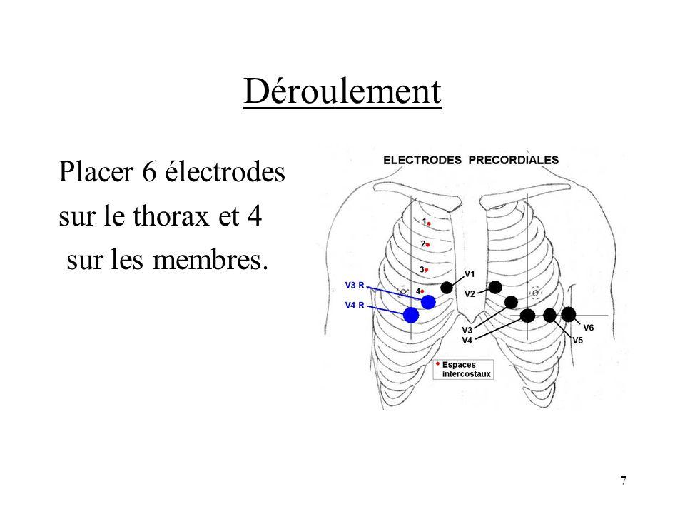 Déroulement Placer 6 électrodes sur le thorax et 4 sur les membres.