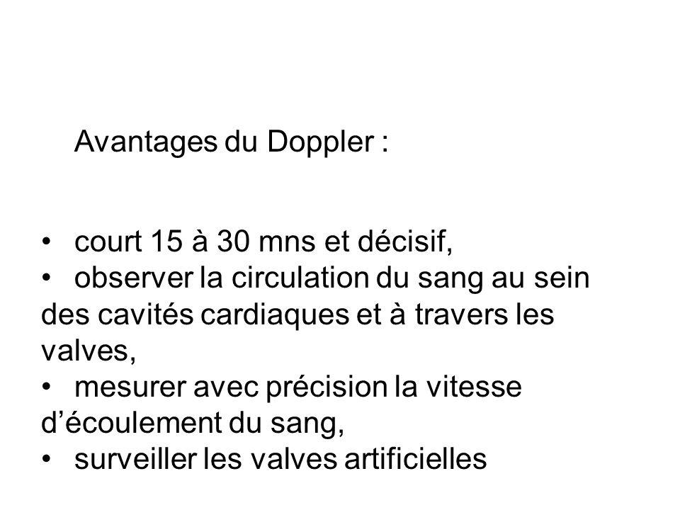 Avantages du Doppler : court 15 à 30 mns et décisif, observer la circulation du sang au sein des cavités cardiaques et à travers les valves,