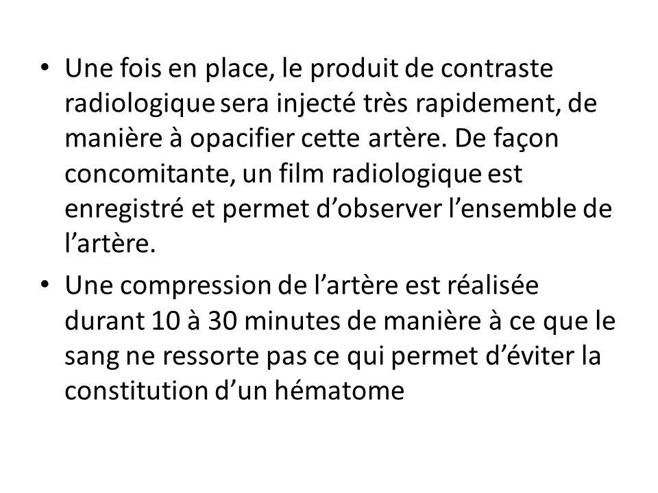 Une fois en place, le produit de contraste radiologique sera injecté très rapidement, de manière à opacifier cette artère. De façon concomitante, un film radiologique est enregistré et permet d'observer l'ensemble de l'artère.