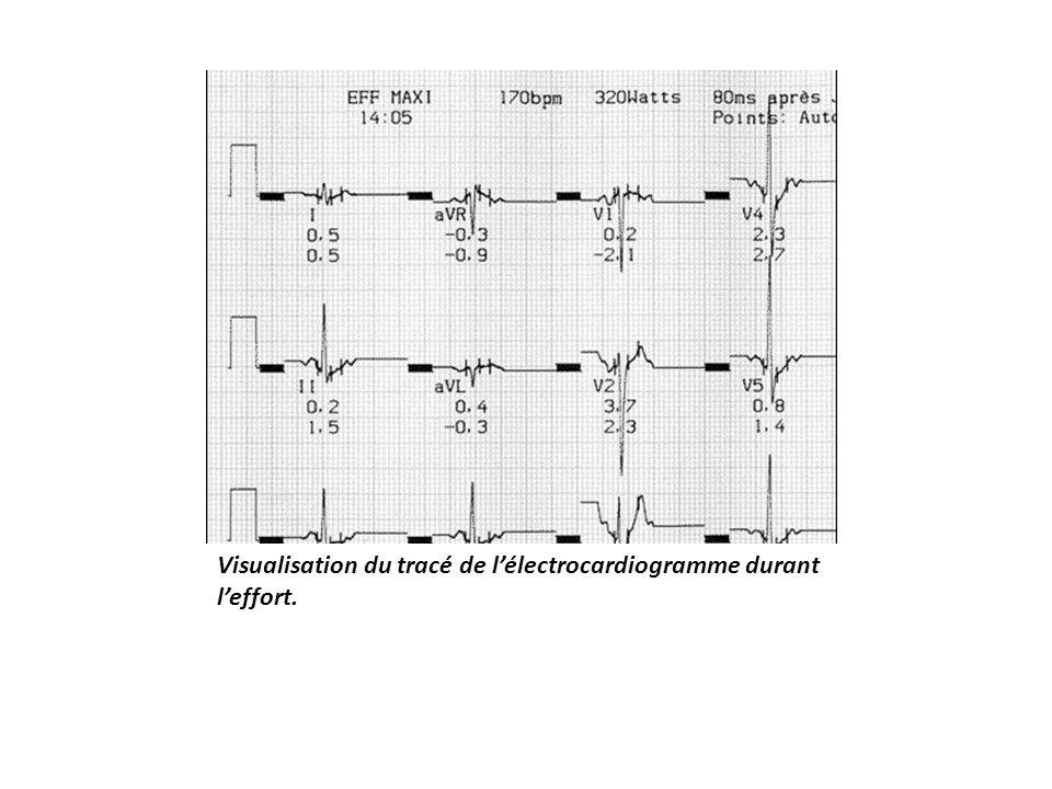 Visualisation du tracé de l'électrocardiogramme durant l'effort.